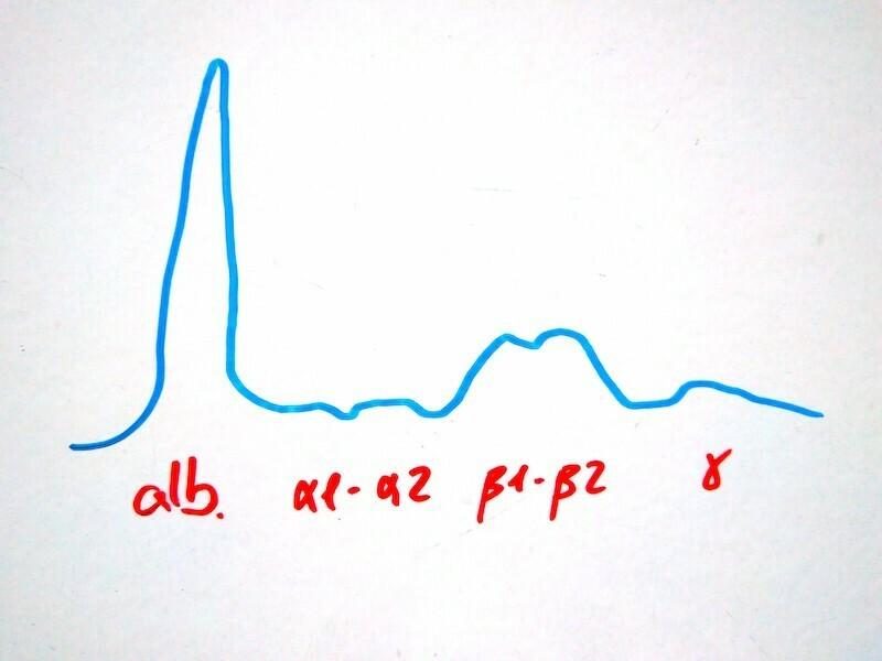 electroforesis-proteica